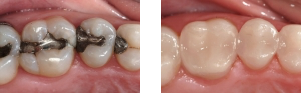 Cosmetic Dental Before and After Images