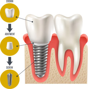 Dental Implant Inforgraphic